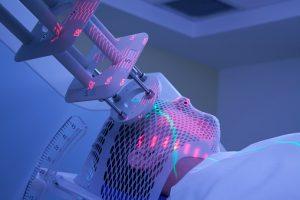 Read more about the article Tout savoir sur la radiothérapie
